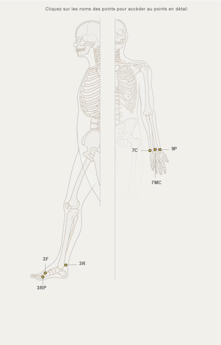 tiny bikini teen camel toe